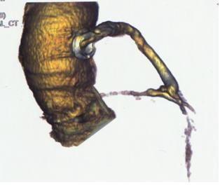 (図1)マルチスライスCTによる冠動脈の評価の画像