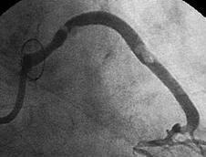 (図1)マルチスライスCTによる冠動脈の評価の写真