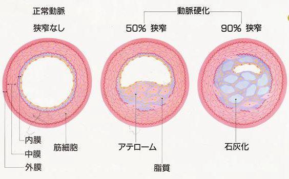 冠動脈硬化の進行の図