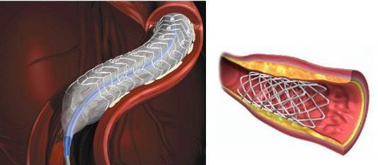 冠動脈内へのステントの挿入と留置の図