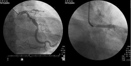 経皮的冠動脈形成術(PCI)の実際の画像