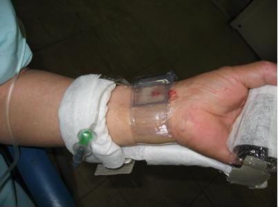 心臓カテーテル検査、治療後の橈骨動脈の圧迫止血の写真