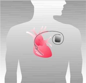 植込み型除細動器(ICD)の図