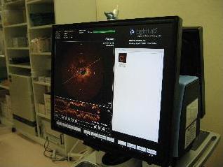 光干渉断層装置の写真