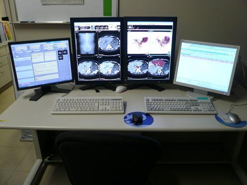 新読影システムの写真
